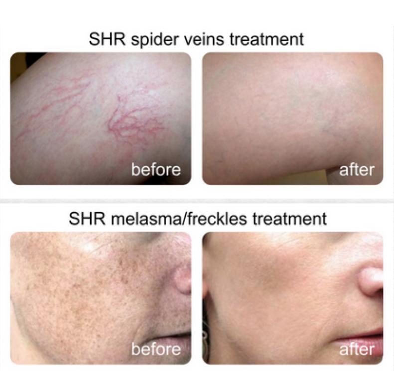 ipl hårborttagning resultat